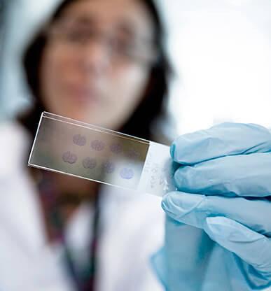 15€. Analitzem l'ADN de 5 voluntaris de l'Estudi Alfa per a la prevenció de l'Alzheimer.