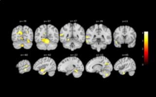 Actualitat: Identifiquen canvis cognitius i cerebrals en persones amb declivi cognitiu