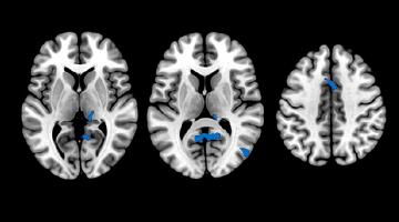 insomnio-cerebro-cognicion-alzheimer