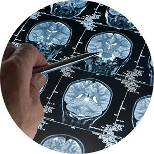 NEUROIMAGING ACQUISITION SERVICES