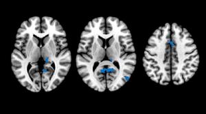 insomnio-cerebro-cognicion-alzheimer-fpm