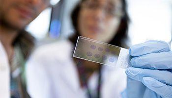 15€. Analizamos el ADN de cinco voluntarios del Estudio Alfa para la prevención del Alzheimer.