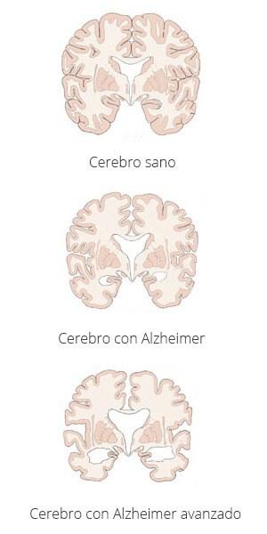 Maladie Alzheimer presenta síntomas de diabetes