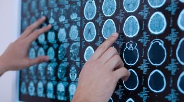 ¿Qué saben los españoles acerca del Alzheimer? Las cinco falsas creencias más extendidas