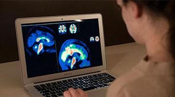 Investigadores europeos mejoran la sensibilidad del diagnóstico de las fases iniciales del Alzheimer